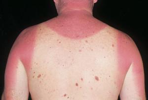 Acute Sunburn
